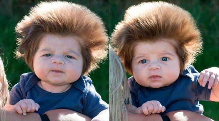 Помните 2-месячного малыша с густыми волосами, как сейчас выглядит малыш
